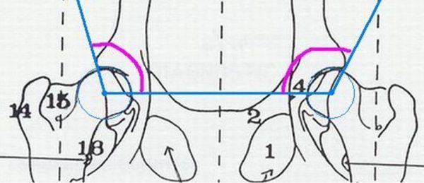 Dysplasie hanches et coudes : dépistage